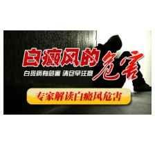 辽宁锦州白癜风销售